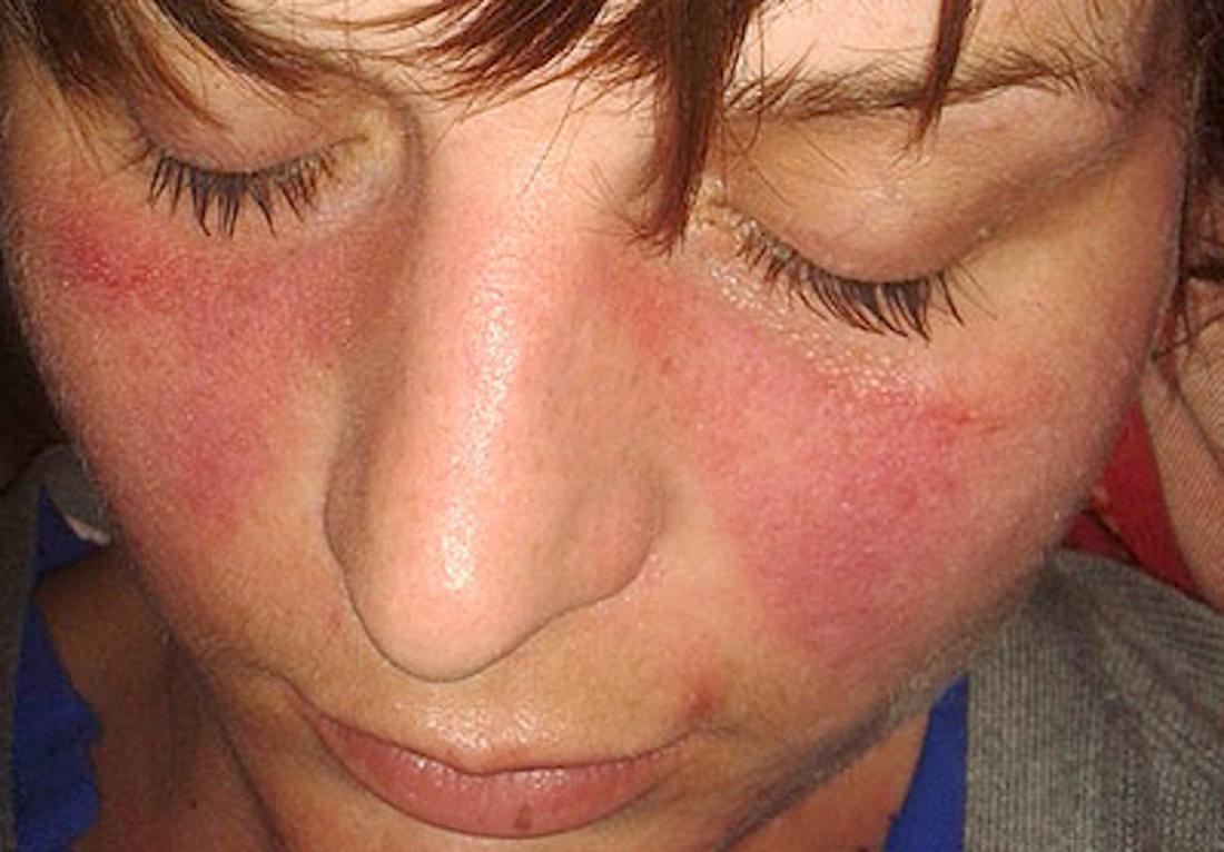 severe disease